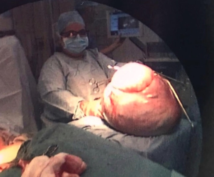 The Cyst